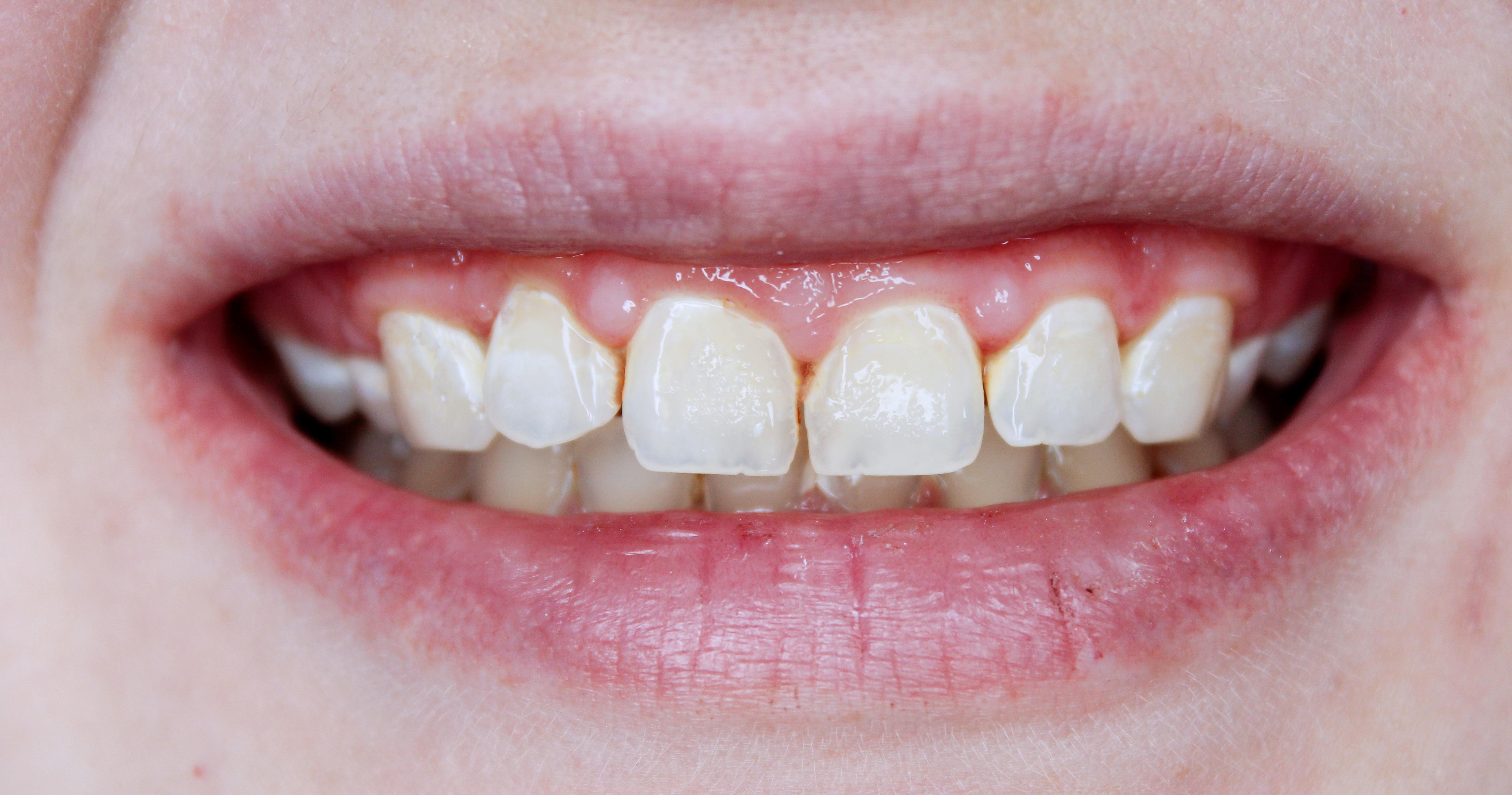 Teeth After.jpg